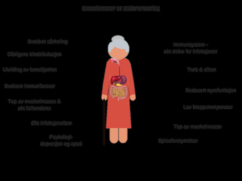 Konsekvenser underernæring